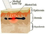 YAG-laser-verwijderen-tatoeage-3[1]
