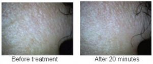 DermaOXY Voor en na de behandeling
